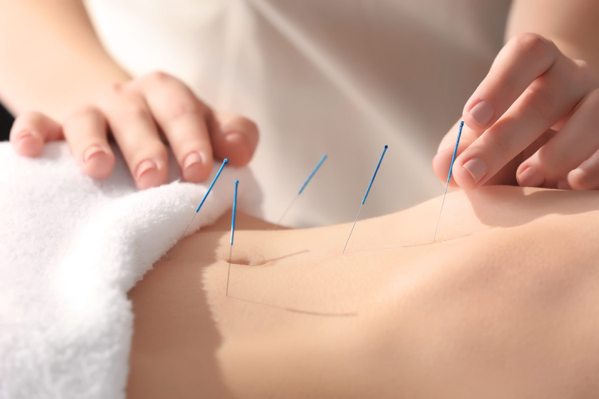 How TCM Acupuncture helps slimming and weight loss
